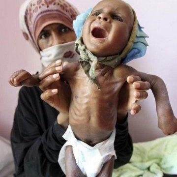 فاجعه قرن در یمن