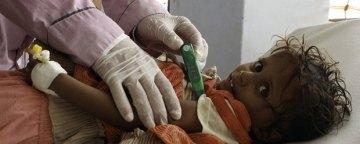 هشدار یونیسف و مرگومیر میلیونها کودک یمنی به دلیل گرسنگی