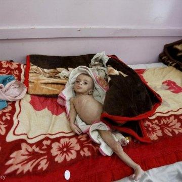 سازمان جهانی مهاجرت: یمن در آستانه یک فاجعه انسانی است
