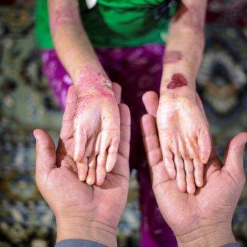 مظلومیت «کودکان ای بی» در ایران باید به گوش جهانیان برسد