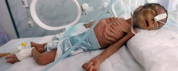 ناامنی کودکان یمنی در سایه فقر، سوءتغذیه و بیجاشدگی