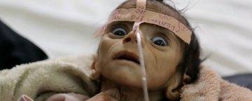 غیرنظامیان قربانیان اصلی جنگ طولانی یمن