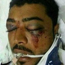 ضد-بشری-آل-خلیفه - واکنش 16 سازمان حقوقی به اقدام ضد بشری آل خلیفه
