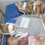 وضعیت-حقوق-بشر-در-یمن - کشورهای مدعی حقوق بشر در مقابل جنایات وحشیانه عربستان سعودی خود را به خواب زدهاند