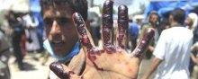 کودکان-یمن - بررسی تجاوز عربستان به یمن از منظر حقوق بینالملل
