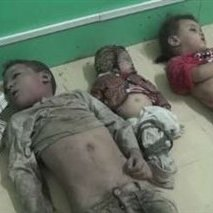 کودکان-یمن - یک هزار و 124 کودک در حمله عربستان به یمن کشته و زخمی شده اند