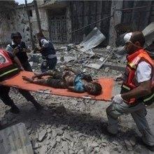 کودکان-یمن - یونیسف: 400 کودک در درگیریهای یمن کشته شدند