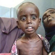 اتیوپی - بحران غذایی 6 میلیون کودک را در اتیوپی تهدید می کند