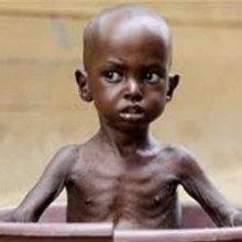 ������ - کودکان جمهوری آفریقای مرکزی از گرسنگی می میرند