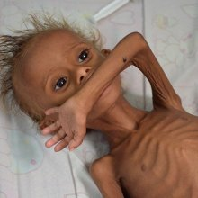کودکان-یمن - تاکنون بیش از 10 هزار کودک یمنی بر اثر فروپاشی نظام بهداشتی کشته شدند
