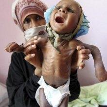 ��������������-���������� - فاجعه انسانی/ یمن در معرض نسل کشی