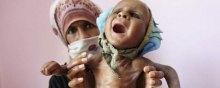 وضعیت-حقوق-بشر-در-یمن - حمایت آشکار آمریکا از استراتژی قحطی و گرسنگی عربستان در یمن