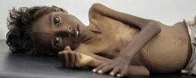 جنگ - جنگ و قحطی در یمن؛ پیامدها و راه کارها
