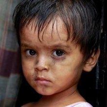 ����������������-���������������� - «وبا» مشکل تازه پناهجویان روهینگیایی