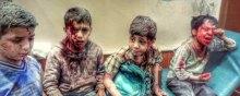 سازمان ملل متحد جنایات ائتلاف عربی علیه کودکان را کم اهمیت جلوه میدهد - کودکان یمن. راه دانا