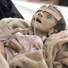 �������� - 85 هزار کودک یمنی قربانی سوء تغذیه