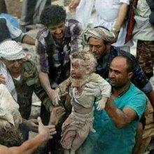 یمن - هشدارهای بینالمللی درباره فقدان امنیت غذایی در یمن