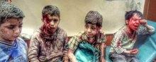 نقض گسترده حقوق یمنیها در جنگ با ائتلاف عربستان از نگاه آمار - یمن. العالم