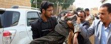 سازمان-ملل - واکنشهای گسترده بینالمللی به حمله جنگندههای سعودی به دانشآموزان یمنی