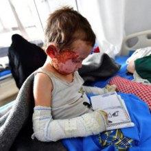 �������� - نجات کودکان: ۴۱۵ میلیون کودک در مناطق جنگی بزرگ میشوند