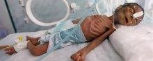 ناامنی کودکان یمنی در سایه فقر، سوءتغذیه و بیجاشدگی - یمن
